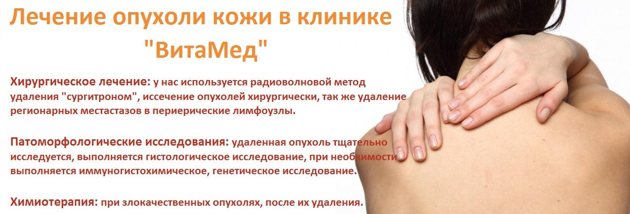 Дерматоонкология, опухоли кожи