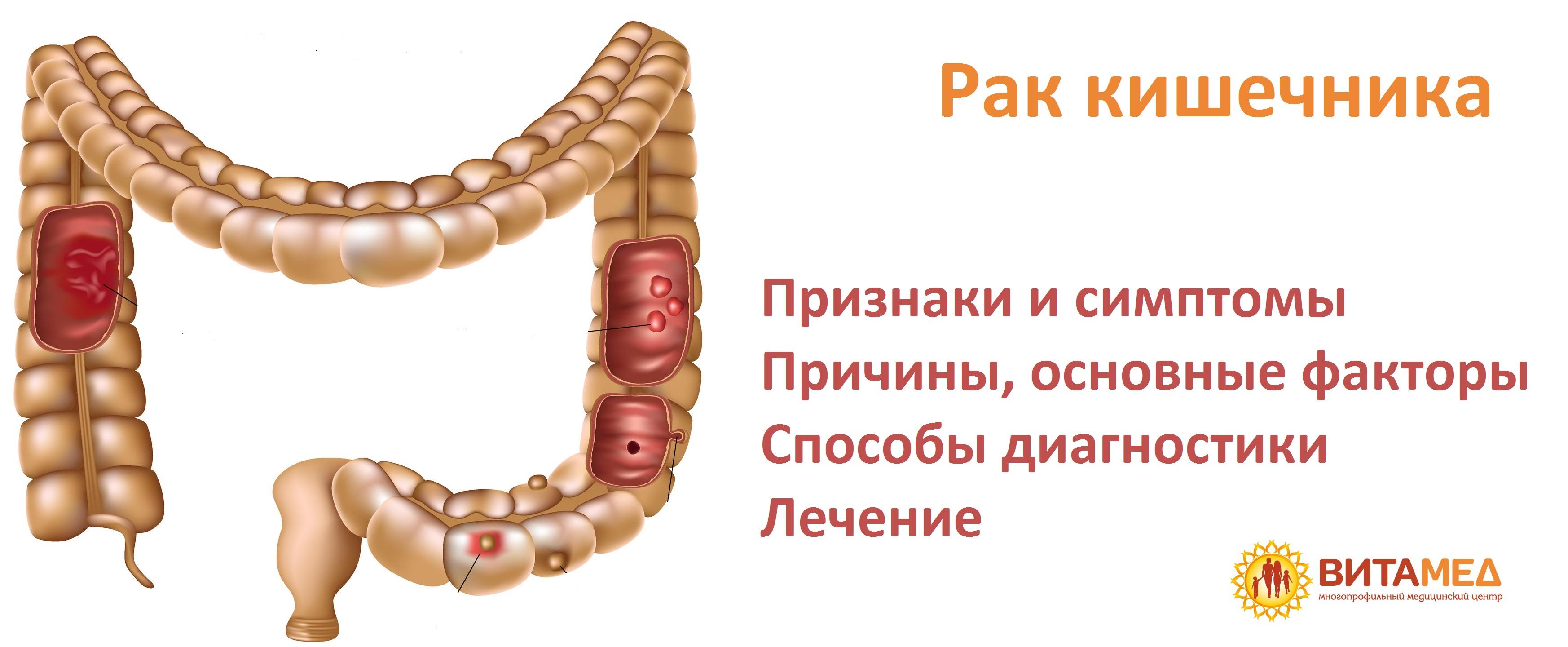 Лечение рака кишечника железы в Москве