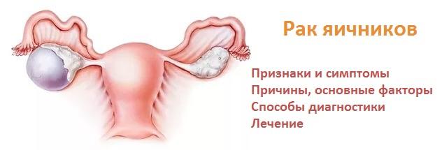 Лечение рака яичников в Москве